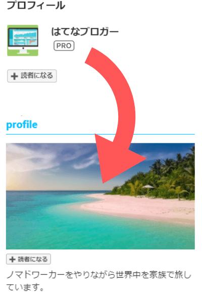 はてなブログ プロフィール画像のカスタマイズ